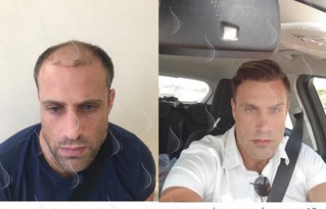 נשירת שיער לגבר או לאשה – למה זה קורה לי? כל הפתרונות לנשירת שיער בשנת 2020