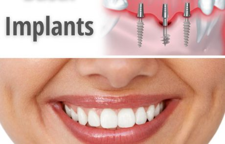 השתלת שיניים למחוסרי עצם: כל הדרכים והאלטרנטיבות החדשניות
