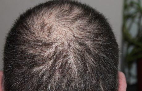 טיפול PRP בנשירת שיער – הסוף להתקרחות במרכזי דוקטור חן בפריסה ארצית