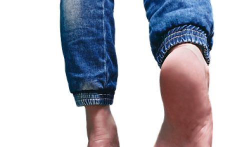 טיפול הסרת יבלות בלייזר – כל המידע והמרכזים המובילים בפריסה ארצית