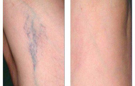 העלמת נימים ברגליים – הטיפול היעיל ביותר במרכזיים ליד ביתך