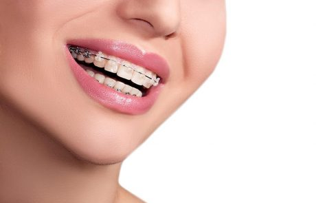 אורטודנט מומחה – לשים את השיניים שלכם בידיים טובות