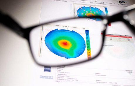 קרטוקונוס – המחלה שפוגעת בקרנית העין