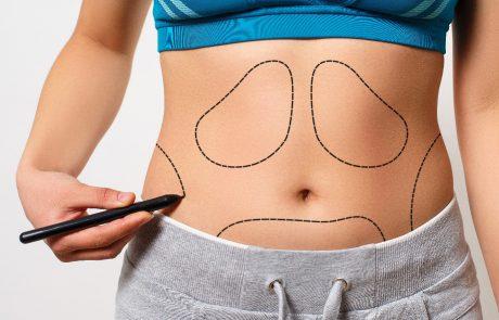 שאיבת שומן ללא ניתוח – האם זה מסוכן?