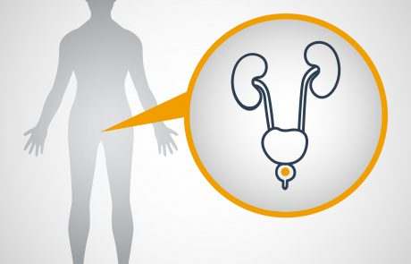 סרטן הערמונית – נפוץ ובר טיפול