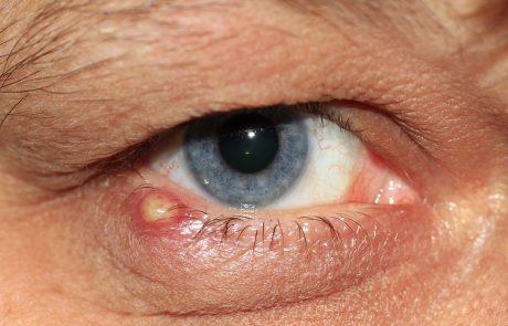 איך מטפלים בשעורה בעין?