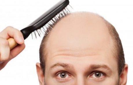 5 סיבות לעבור השתלת שיער באיסטנבול כבחירה הראשונה בעולם