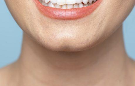 טיפים לשמירה על השיניים לאחר טיפול יישור שיניים
