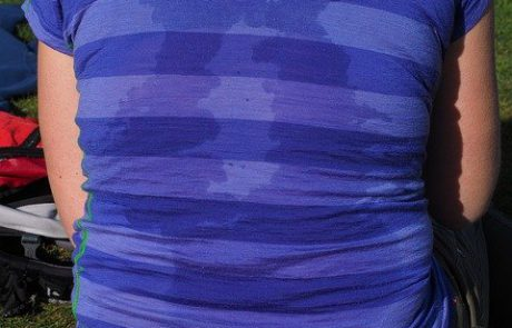 מירה דריי – לא חייבים לחיות עם הזעת יתר