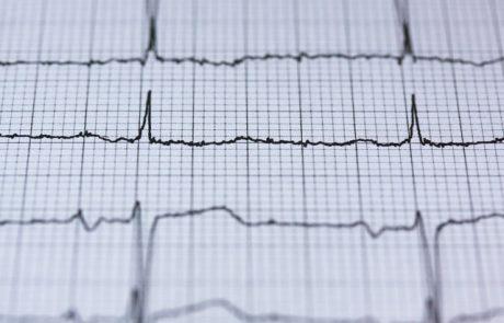 מיוחד ליום האישה: התקף לב אצל נשים, לא התסמינים שחשבתן